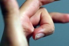 Безопасные и эффективные способы, как убрать супер-клей с кожи рук
