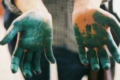 Щадящие и безопасные способы и средства, как отмыть зеленку с кожи